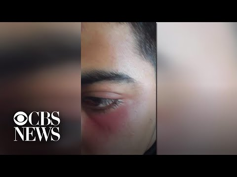 Syrian teen allegedly attacked on San Francisco trolley