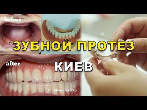Протезирование зубов в Новосибисрке - цены на зубные