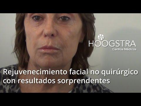 Rejuvenecimiento facial no quirúrgico con resultados sorprendentes (15032)