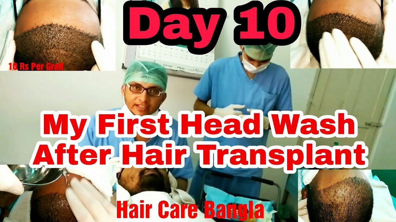 My First Head Wash After Hair Transplant – My Hair Transplant Journey In Hindi