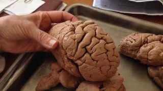 Кора больших полушарий головного мозга.