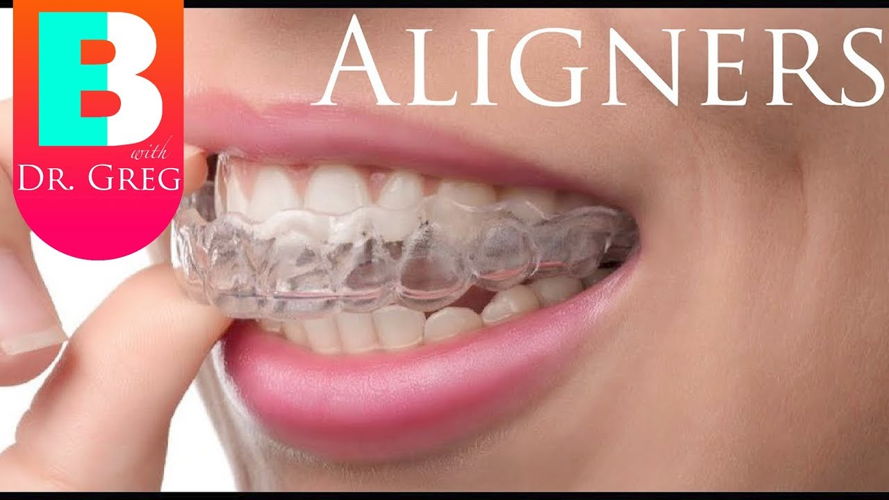 Things To Know Before Invisalign Clear Aligner Therapy
