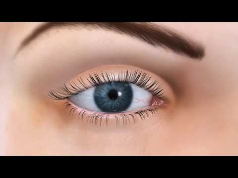 Vold Vision - Dry Eye LipiFlow Treatment