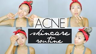 my acne skincare routine for clear acne free skin   oily combo acne prone skin