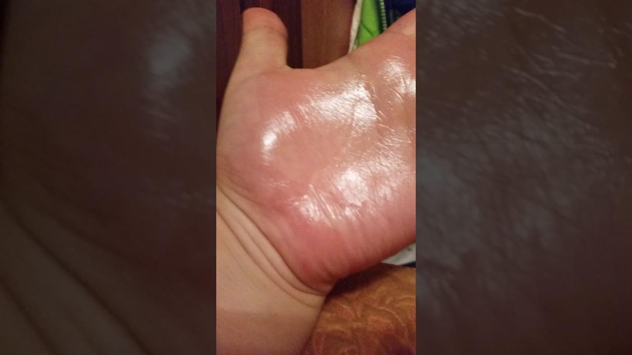 Облазит кожа на головке и крайней плоти: причины и чем лечить