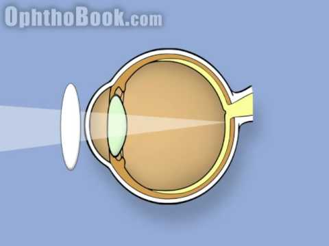 Retinoscopy of the eye (Ophthalmology)