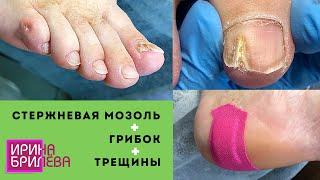 Стержневая мозоль удаление 🌸 Грибок ногтей 🌸 Трещины 🌸 Очень много работы 🌸 Педикюр 🌸 Ирина Брилёва
