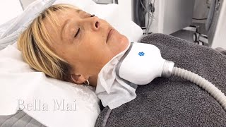 Double Chin Fat Freezing