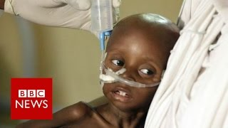 Humanitarian crisis  20m at risk of famine and starvation   BBC News