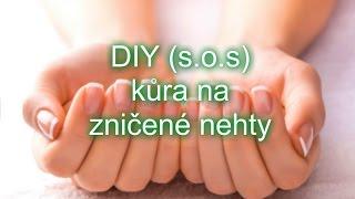 DIY s.o.s kůra na zničené nehty