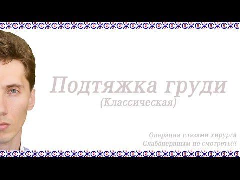 Подтяжка груди в г. Краснодаре. 02. Пластический хирург Суходолов Я.И.