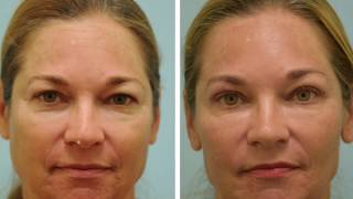 One Week after Upper Blepharoplasty Video and Photos