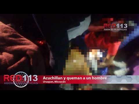 VIDEO Hombre queda malherido al ser navajeado y quemado con gasolina