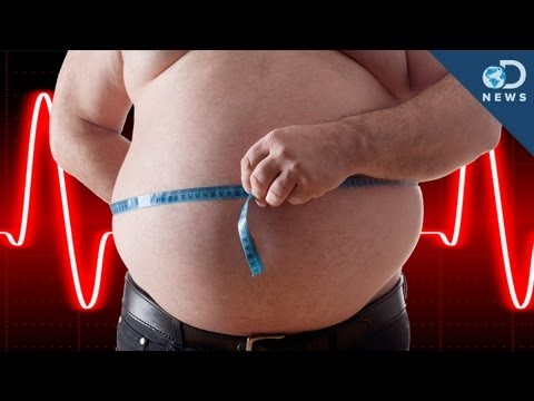 Should Obesity Be A Disease?