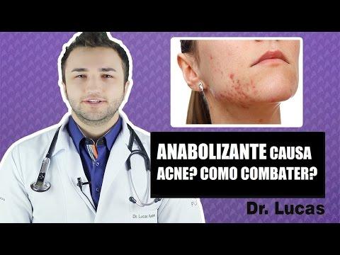 Anabolizante causa acne? Como combater? Dr Lucas Fustinoni