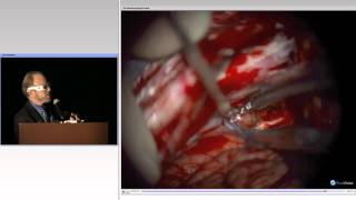 AANS Operative Nuances 3D Session During Miami Meeting: Part III