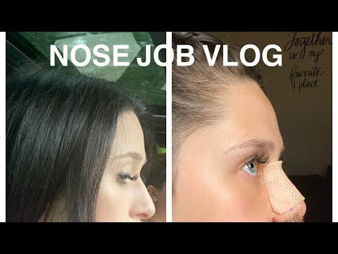 nose-job-vlog!-price,-recovery,-what-to-expect,-before-&-after!