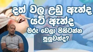 දත් වල උඩු ඇන්ද යටි ඇන්ද මරු වෙලා පිහිටන්න පුලුවන්ද?  | Piyum Vila | 24-01-2020 | Siyatha TV