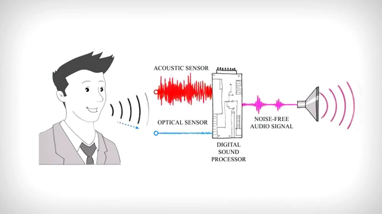 vocal zoom make your voice heard new kiss animation