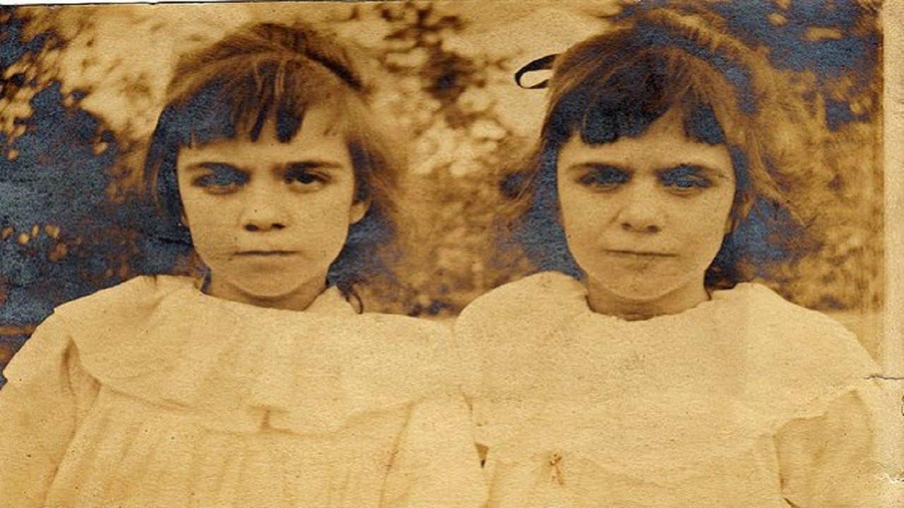 Cặp sinh đôi kỳ lạ: Sống cùng với ký ức của 2 người chị quá cố, giống đến cả nỗi sợ hãi và cách ăn