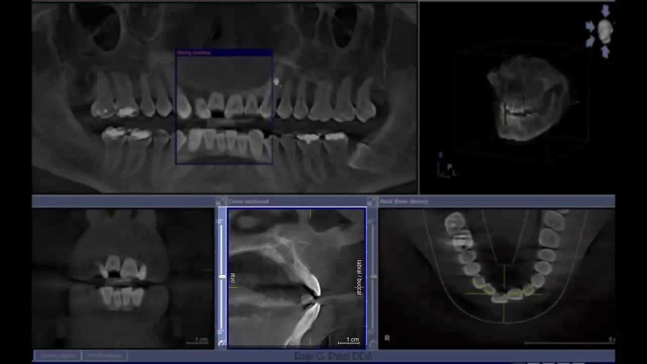 Nasopalatine Duct Cyst Cone Beam Computed Tomography