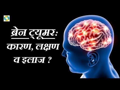 ब्रेन ट्यूमर का इलाज ||Brian Tumor Ka Ilaj ||  Brain Tumor Treatment in Hindi