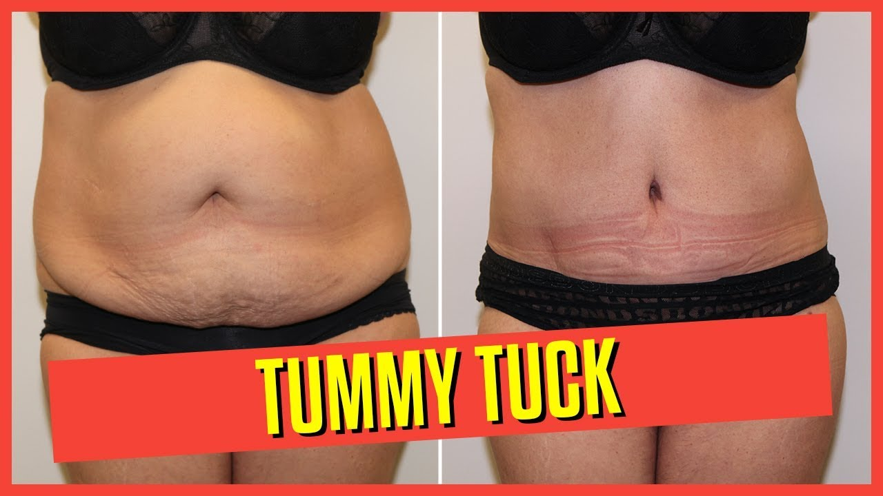 Abdominoplasty Tummy Tuck Removing Excess Skin And Stretch Marks After Pregnancy Weight Loss