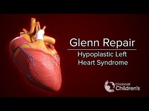 Medical Animation Glenn Operation Cincinnati Children S Youtube