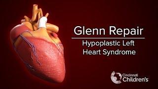 Medical Animation: Glenn Operation | Cincinnati Children's