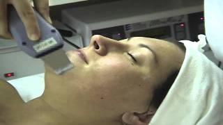Ultrasonic Facial Demonstration