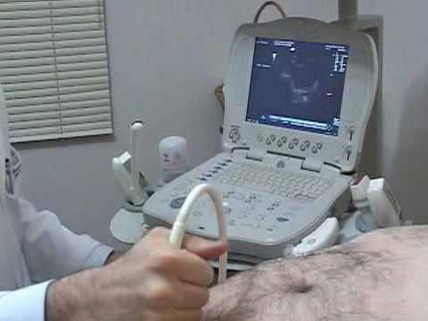 usg prostata via abdominal