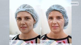 видео Миндальный пилинг: отзывы, фото до и после