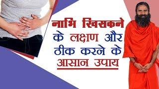 Download नाभि (Navel) खिसकने के लक्षण और ठीक करने के आसान उपाय | Swami Ramdev