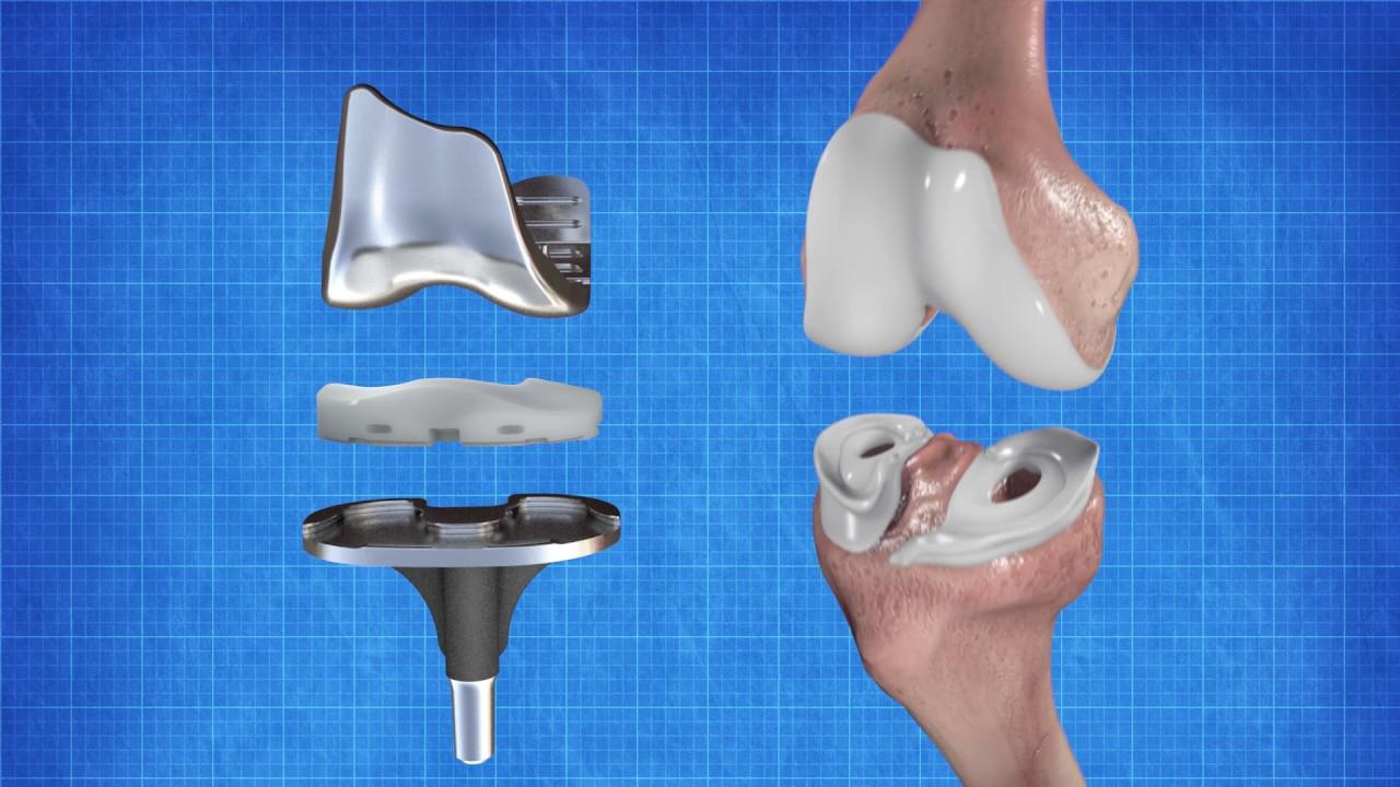 David William Fabi MD Orthopaedic Surgeon Joint Replacement