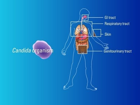 Sources of Candida Organisms