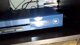 Xbox forza edition turn on/off engine sound