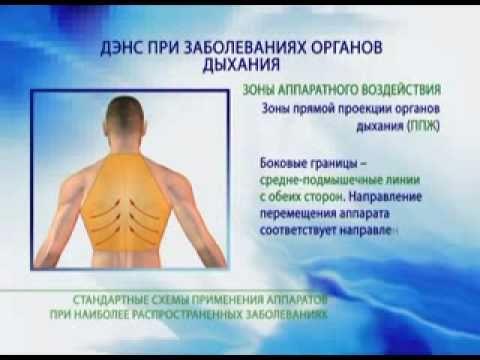 Трахеит: симптомы, лечение. Как лечить трахеит