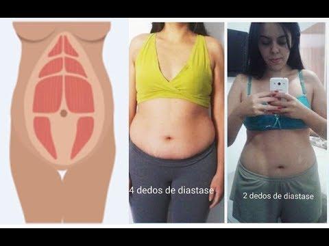 dieta para perder barriga apos gravidez