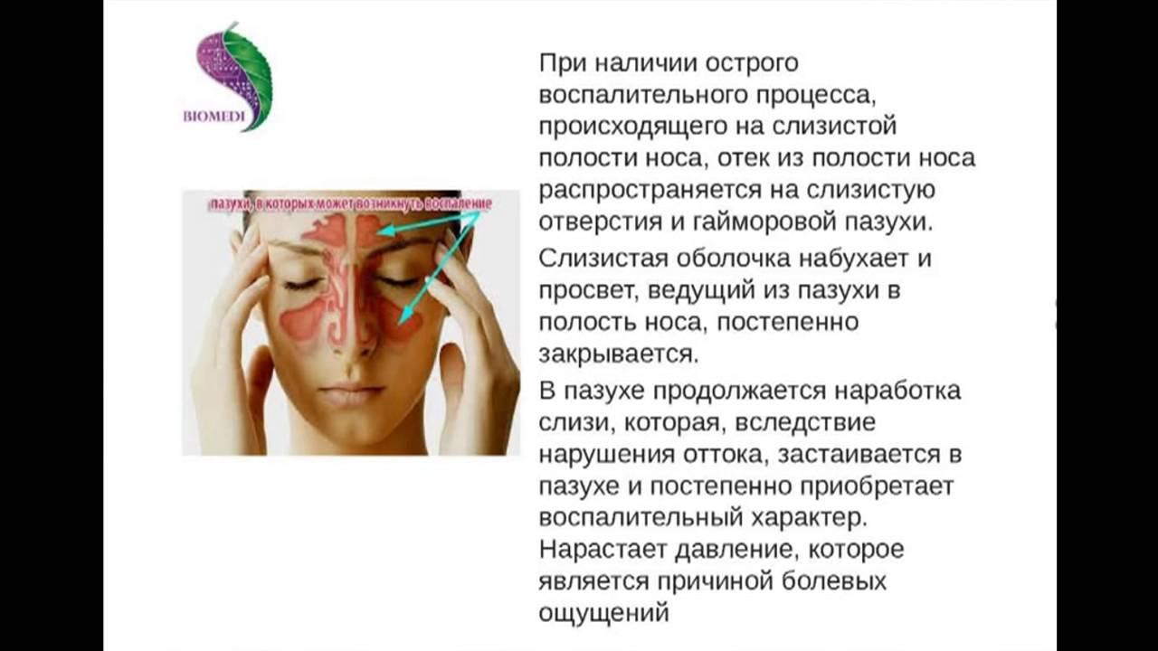 Симптомы, лечение и профилактика синусита. Как лечить синусит 68