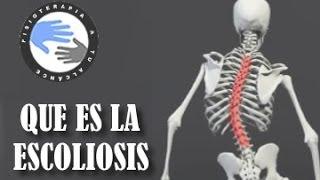 Escoliosis, que es y como se produce  /  Fisioterapia a tu alcance
