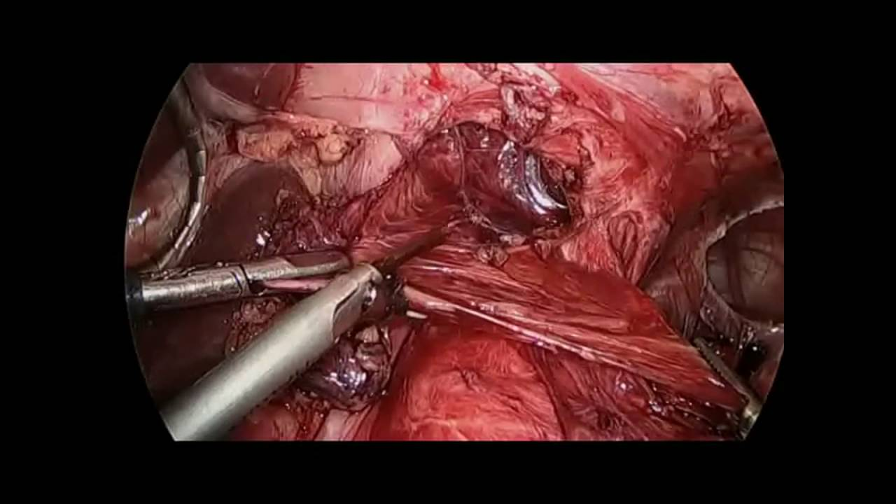 Laparoscopic repair of recurrent Type 4 hiatal hernia after Roux-en-Y  gastric bypass