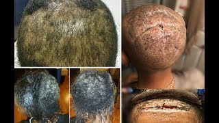 AssauIt on Black Hair - The damage is done - How to undo it.