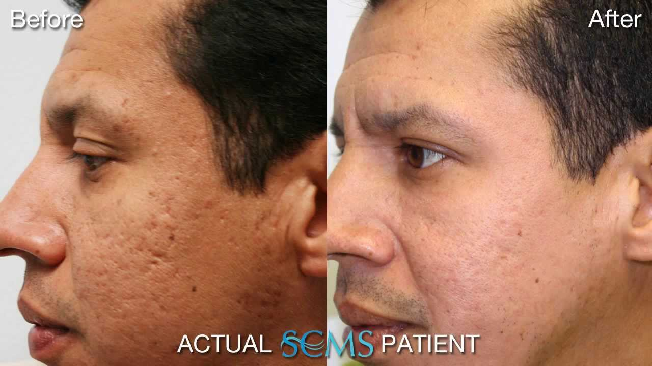 July 2013 Acne Scar Removal Results Male Patient Before And After Acne Scar Youtube