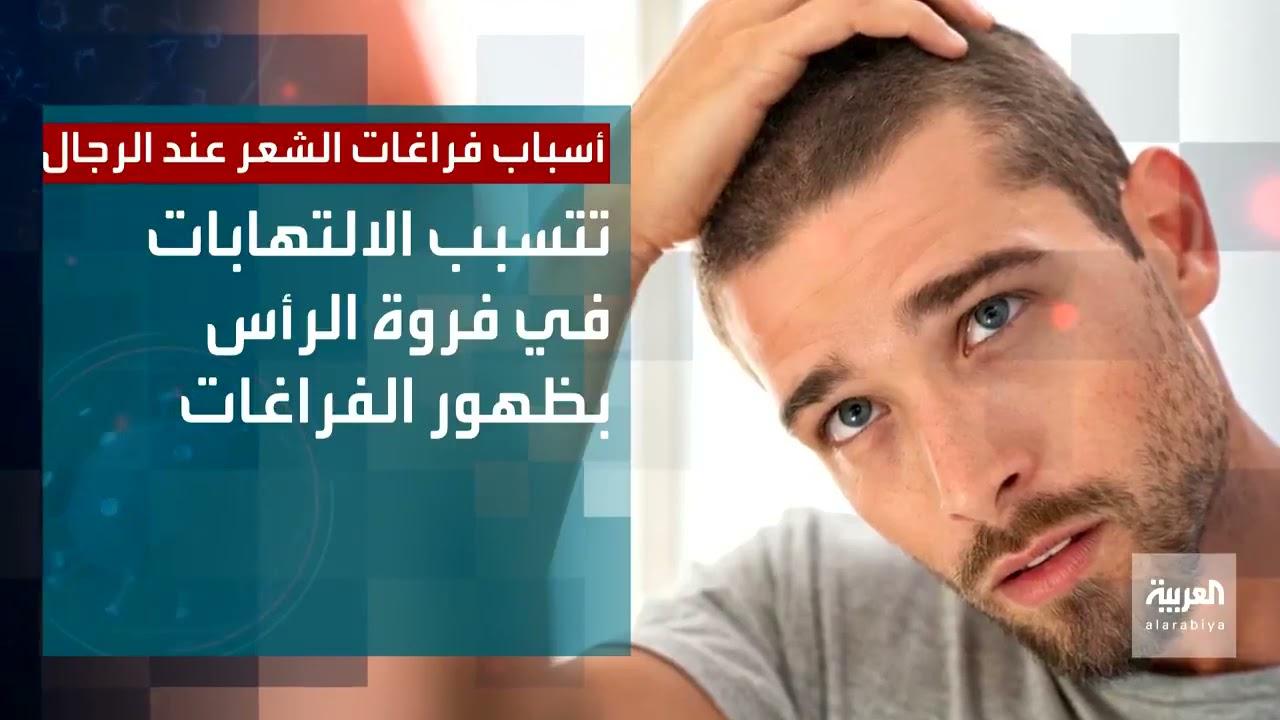 الالتهابات في فروة الرأس من أسباب فراغات الشعر عند الرجال  - نشر قبل 2 ساعة