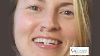 Allison's Fantastic iLasik Experience