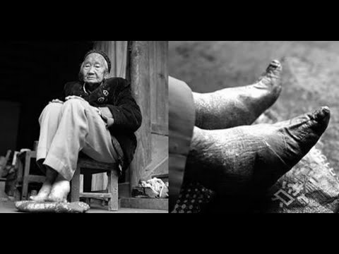 Meet The Last Women In China With Lotus Feet Youtube