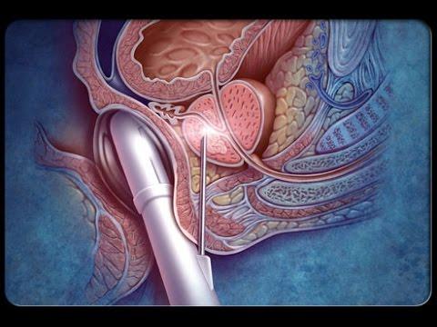 objawy przewlekłego zapalenia prostaty