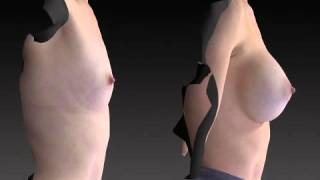 Breast Enhancement 3D Before and After-57
