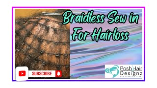 Braidless Sew in Installation for Hairloss