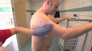 Dagbehandeling van psoriasis en eczeem
